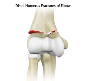 Distal Humerus Fractures of the Elbow/ORIF