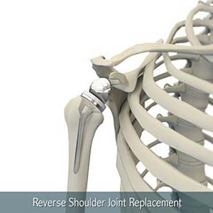Reverse Shoulder Replacement